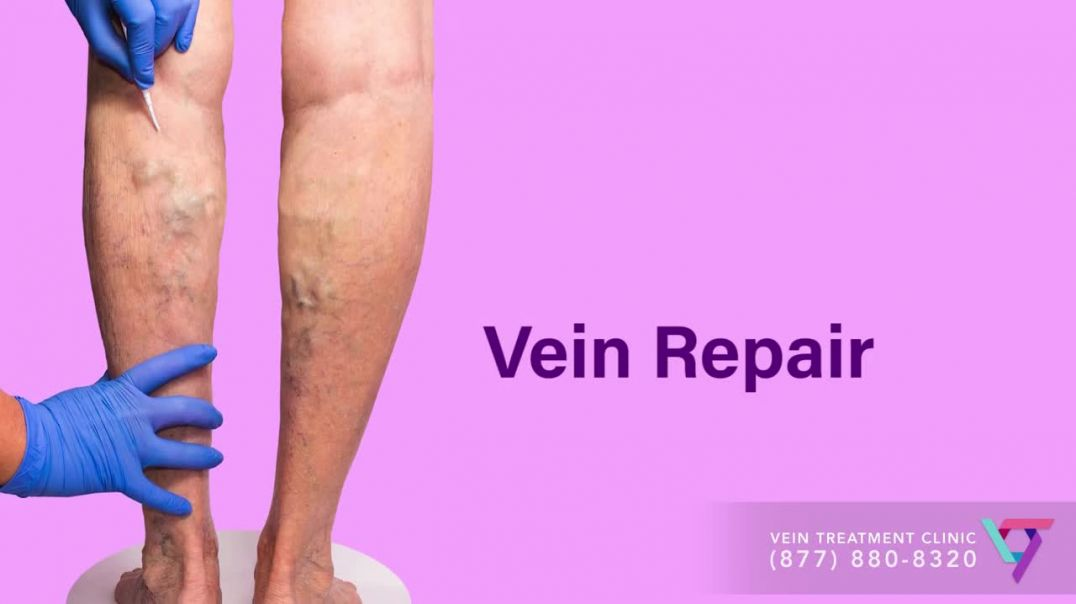 Medical Center- Vein Repair - Spider and Varicose Vein Treatment Center.mp4