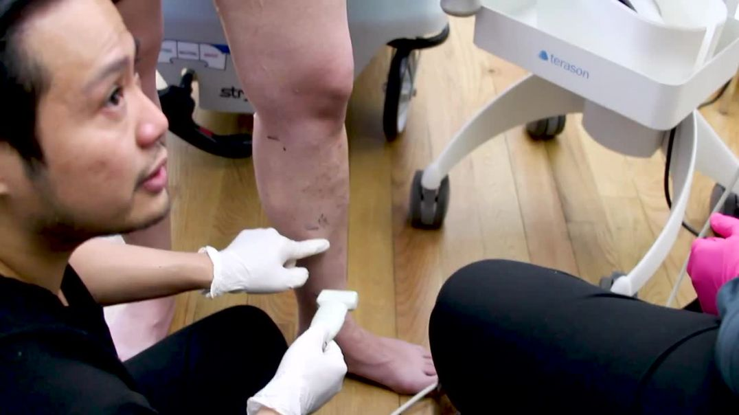 Vein Treatment Center - Ivy League Trained Doctors for Varicose Veins and Spider Veins (1).mp4