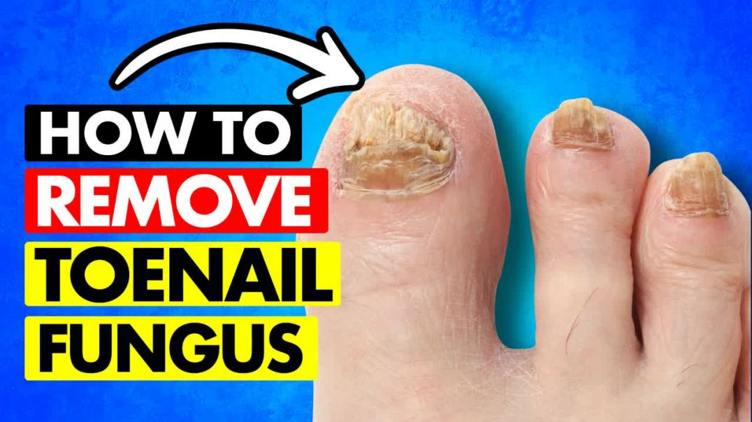 HOW TO REMOVE TOENAIL FUNGUS!.mp4