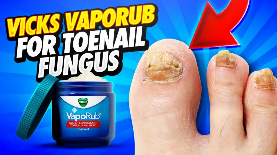 Vicks Vaporub For Toenail Fungus (Does It Work).mp4