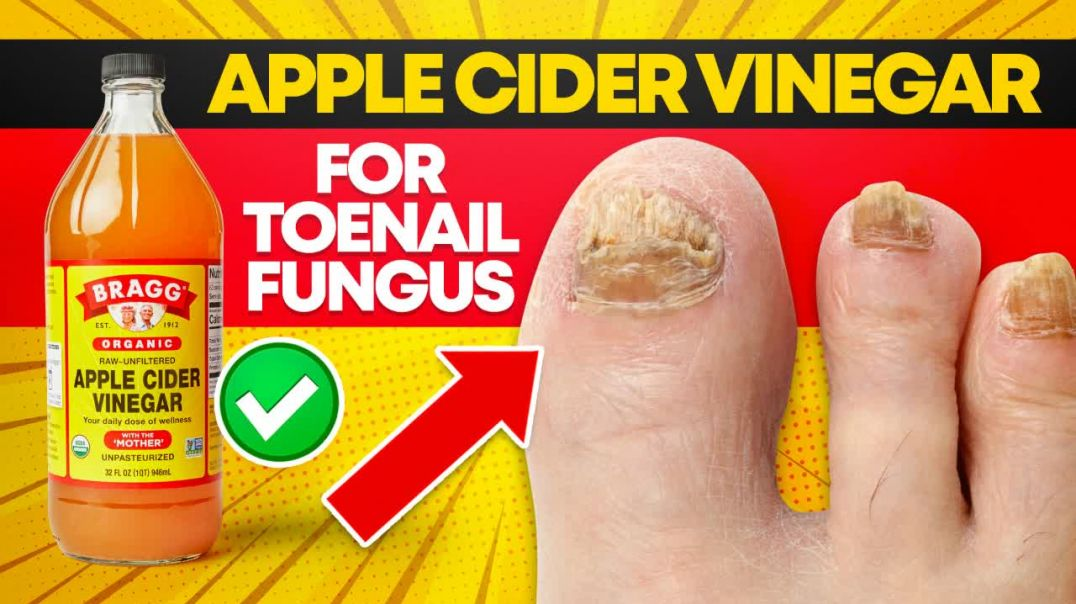 APPLE CIDER VINEGAR for TOENAIL FUNGUS (How Effective Is It).mp4